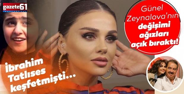 Günel Zeynalova'nın değişimi ağızları açık bıraktı!